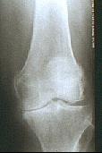 Knee arthritis 2