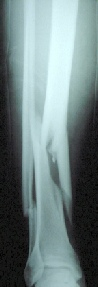 Radiograph comminuted fracture of the tibial shaft
