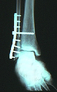 Radiograph of the Weber C ankle fracture after internal fixation