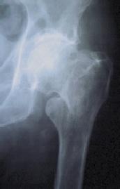 Intertrochanteric fracture of the upper femur (hip joint)